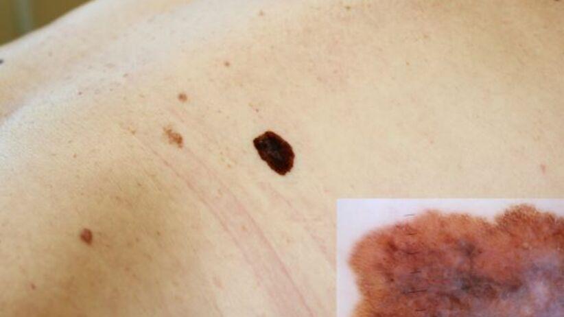 Objawy czerniaka - zmiany na skórze