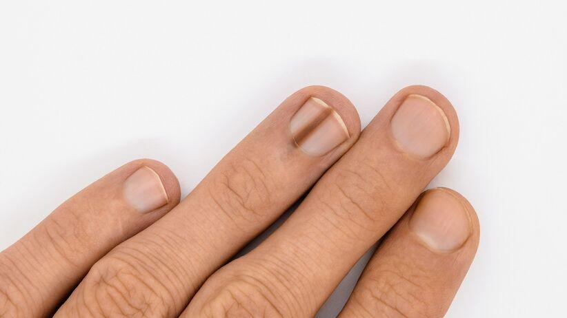 Czerniak paznokcia - jakie są objawy?