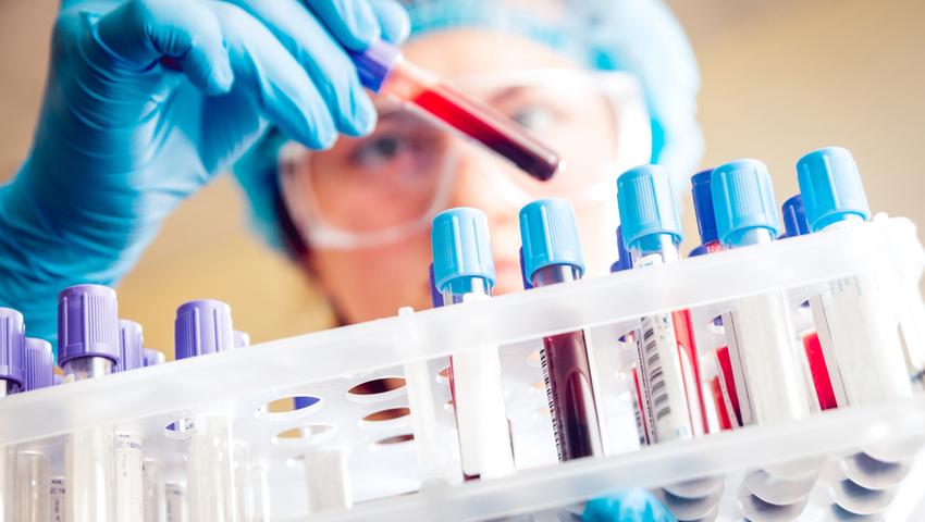 Badania profilaktyczne wykrywające nowotwory