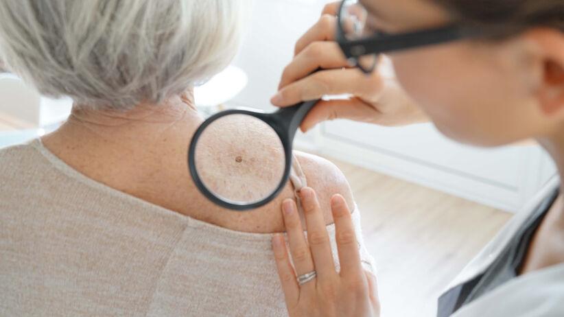 Badanie skóry