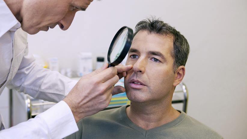 Rak podstawnokórkowy skóry