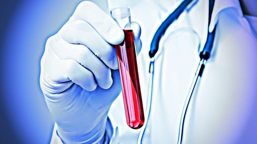 """Odkryto onkologiczny """"Święty Graal"""". Test krwi szansą na szybsze wykrycie raka?"""