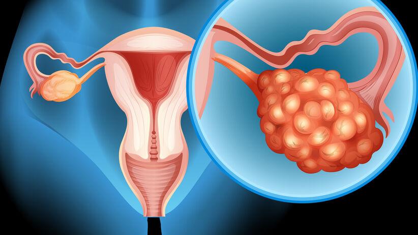 Rak jajnika - wczesne objawy