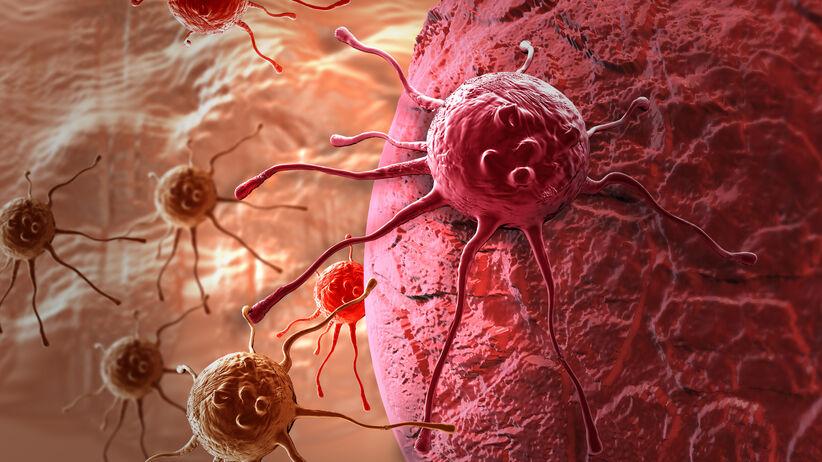 Wznowa raka (nawrót choroby nowotworowej)