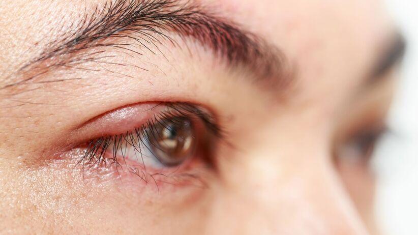 Kontaktowe zapalenie powiek i spojówek