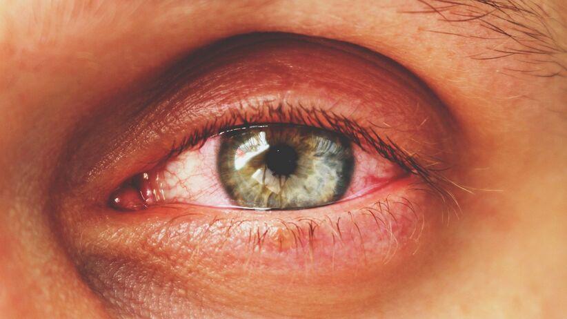 Zapalenie spojówek a koronawirus