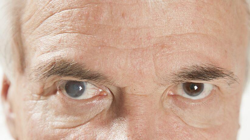 Zaćma (katarakta) - metody leczenia wg. prof. Jerzego Szaflika
