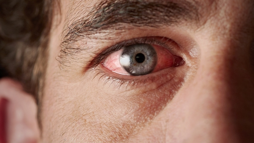 Ból oka i zespół różowego oka jako objaw COVID-19