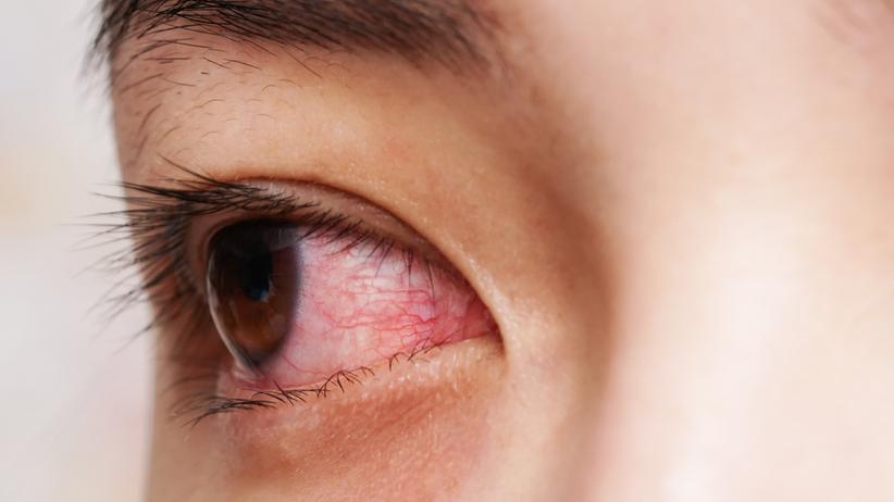 Zaczerwienione oko może być objawem choroby
