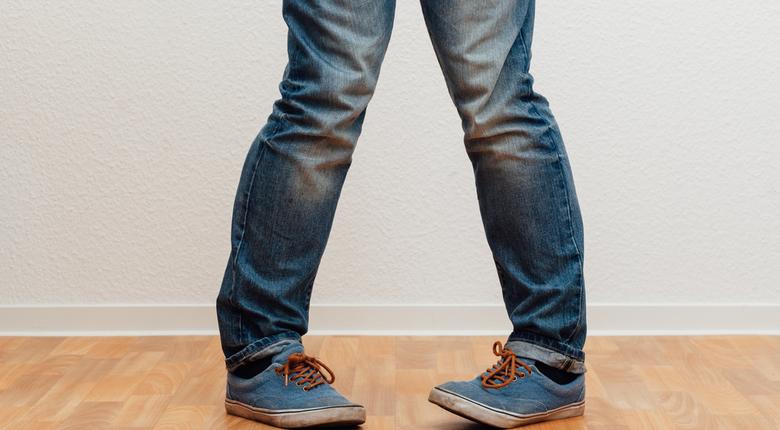 Koslawość kolan to częsta wada postawy