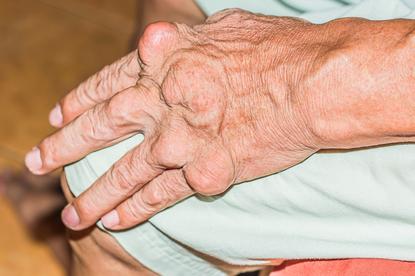 Objawy dny moczanowej (guzki)