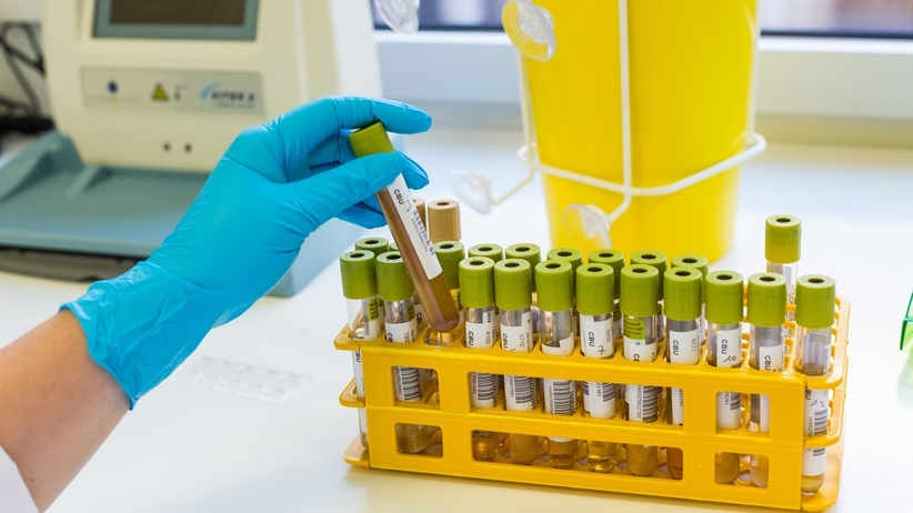 Badanie moczu: podstawowe badanie diagnostyczne. Na czym polega?
