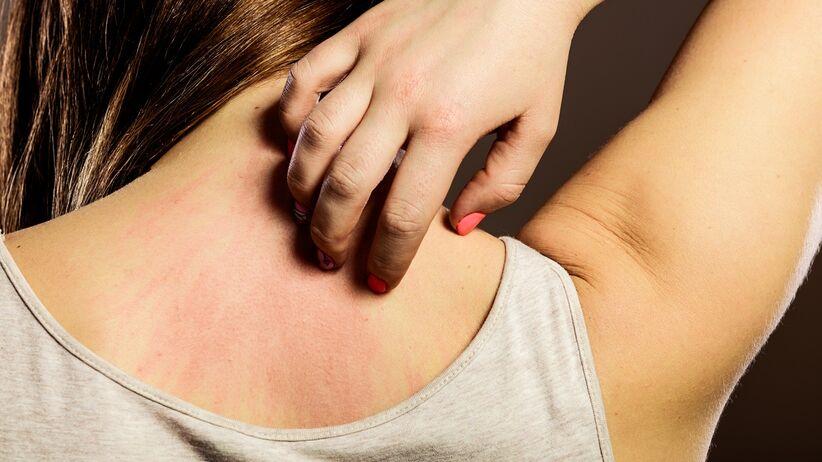 Zmiany skórne a przewlekła choroba nerek