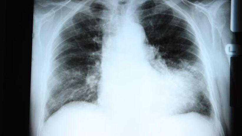 Grypowe zapalenie płuc
