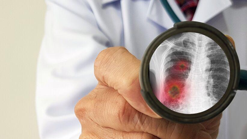 Zapalenie płuc może zabić - eksperci alarmują
