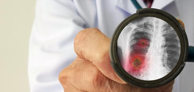 Zapalenie płuc może zabić, więc go nie bagatelizujmy – apeluje ekspert