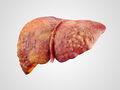 La cirrosis es una condición irreversible.  En casos extremos, conduce a la muerte.
