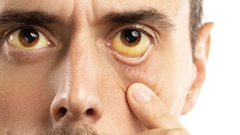 Zażółcenie białek oczu - objaw chorej wątroby