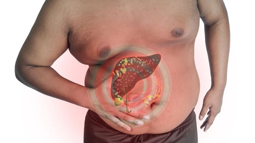 Stłuszczenie wątroby u otyłego mężczyzny