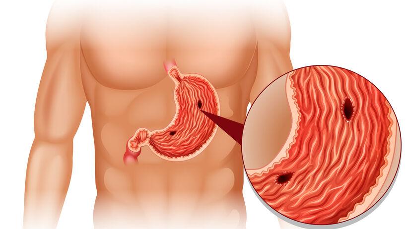 Wrzody żołądka są częstą przyczyną bólu i niestrawności. Co wywołuje chorobę wrzodową?