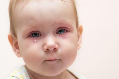 Oparzenia u dzieci - jak udzielić pierwszej pomocy?