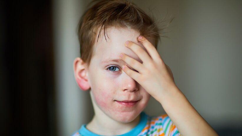 Pokrzywka u dzieci: objawy, przyczyny. Na co zwrócić uwagę?