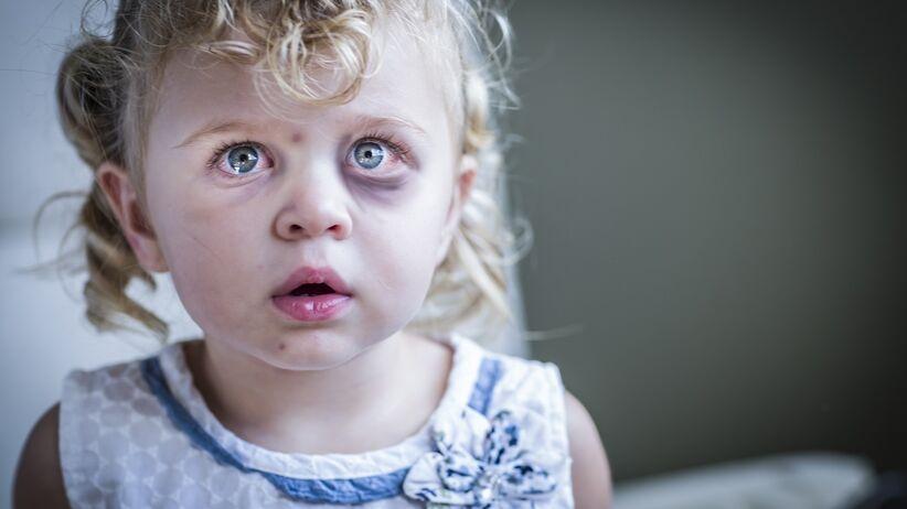 Zespół dziecka maltretowanego - jak rozpoznać?