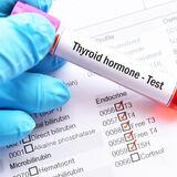 hormony tarczycy