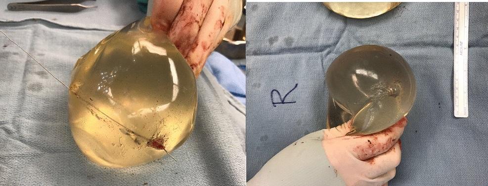 implanty uratowaly ja