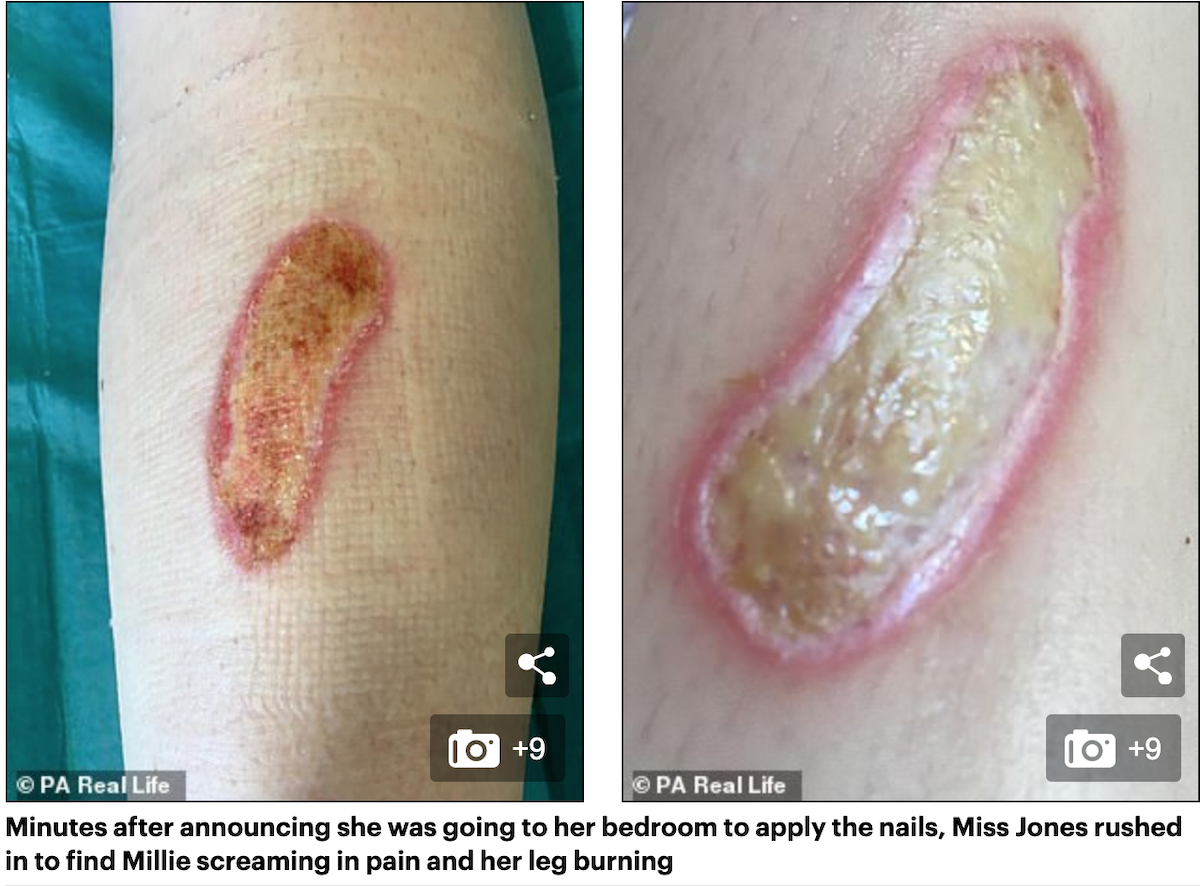 Klej do tipsów może powodować poparzenia