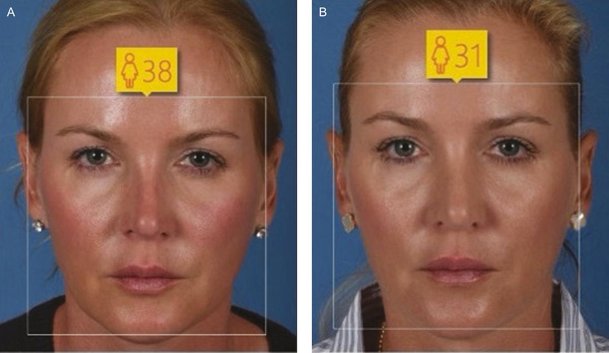 woman-rhinoplasty-42