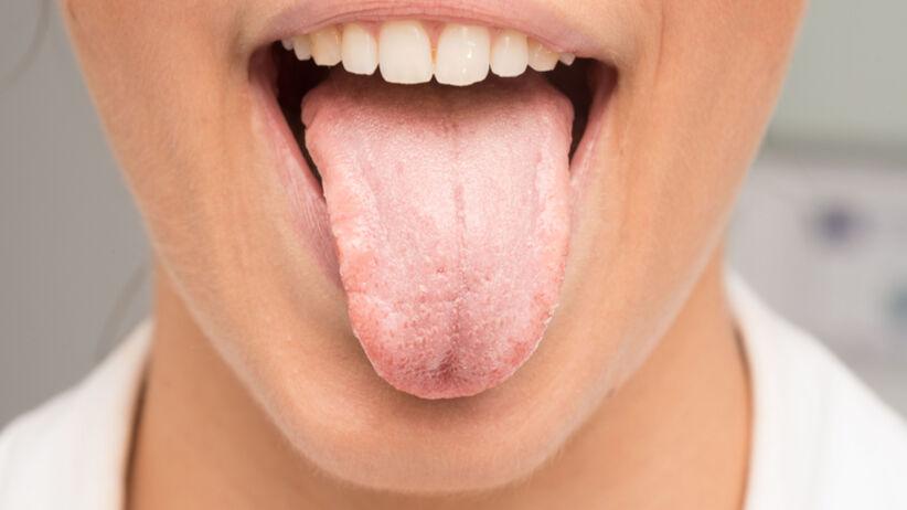 biały nalot na języku