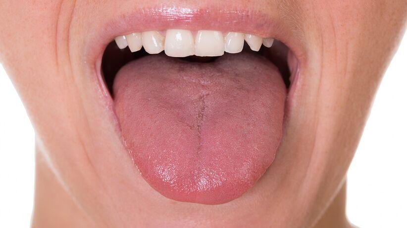 Owrzodzenia języka, jamy ustnej - nowy objaw COVID-19