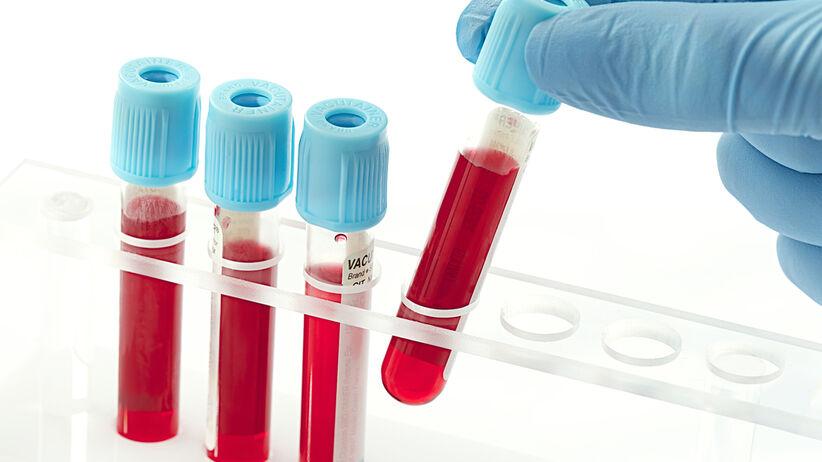 Hematokryt to jeden z parametrów oznaczanych w badaniu krwi
