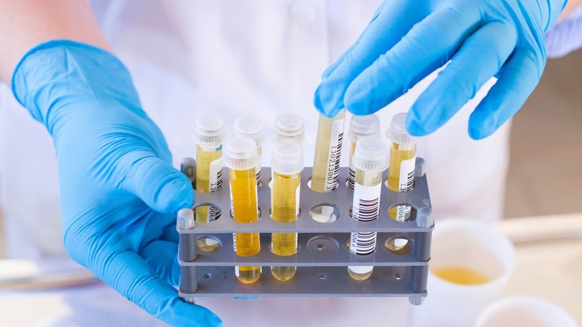 Posiew moczu to inaczej badanie bakteriologiczne próbki moczu