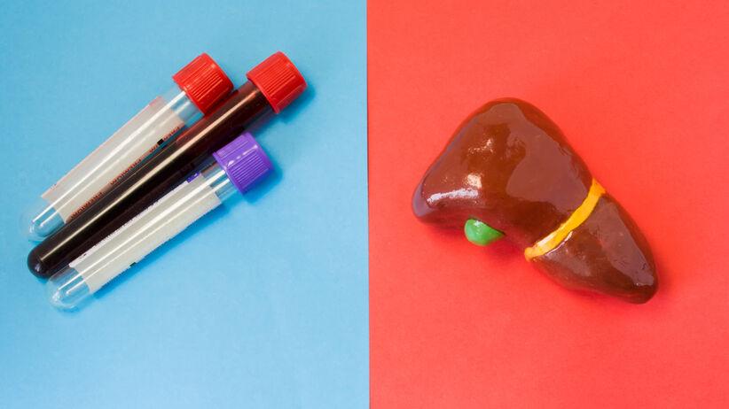 Póby wątrobowe to badanie krwi mające na celu ocenę funkcji wątroby