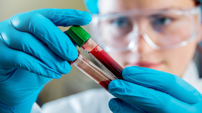 Test na przeciwciała przeciw koronawirusowi