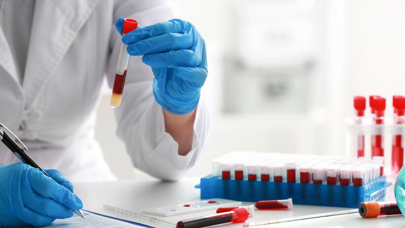 Tyreoglobulinę bada się z próbki krwi