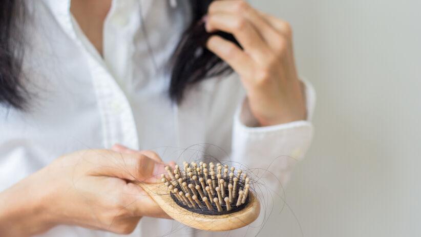Wypadanie włosów a tarczyca
