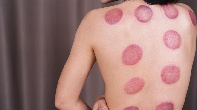 Bańki lekarskie to jedna z najstarszych metod leczenia