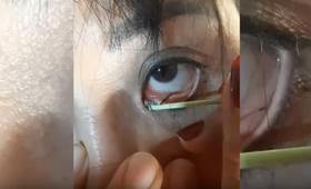 Wyciąganie pasożyta z oka?
