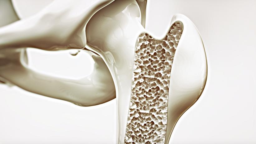 Kości, złamania, klej do kości, nowy wynalazek naukowców