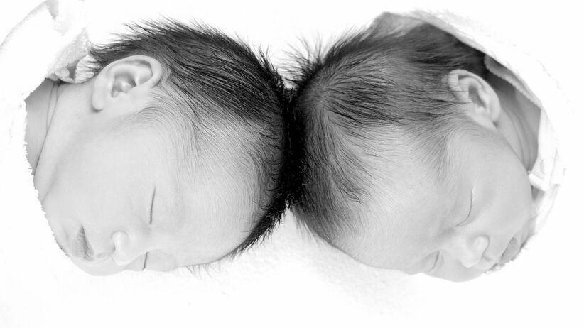 bliźnięta syjamskie