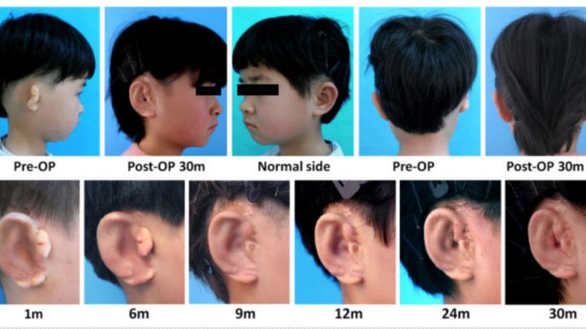 Chińczycy wyhodowali chorym dzieciom... nowe uszy na ich własnym ciele!