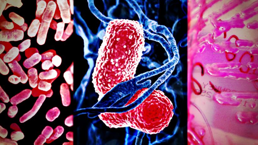 Klebsiella Pneumoniae/Superbakteria New Dehli/Zakażenia szpitalne/Zarazki w polskich szpitalach/NIK