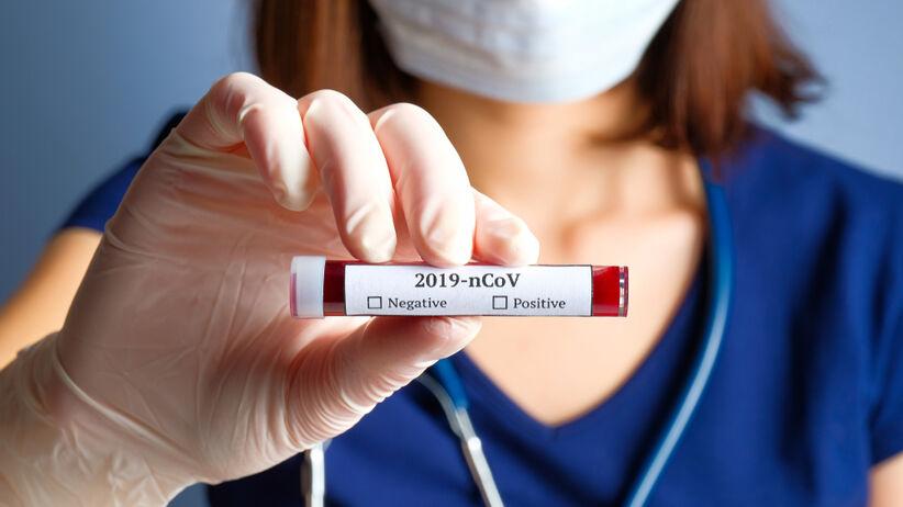 Koronawirus: w Polsce nie ma testów diagnostycznych
