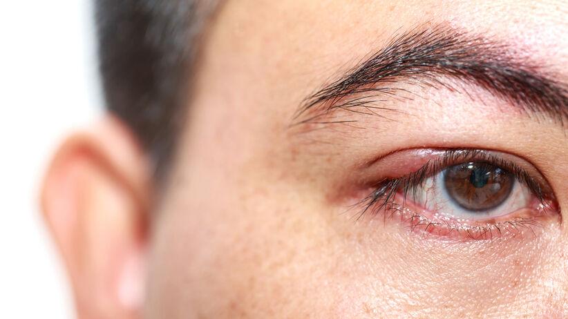 Koronawirus może wnikać przez oczy