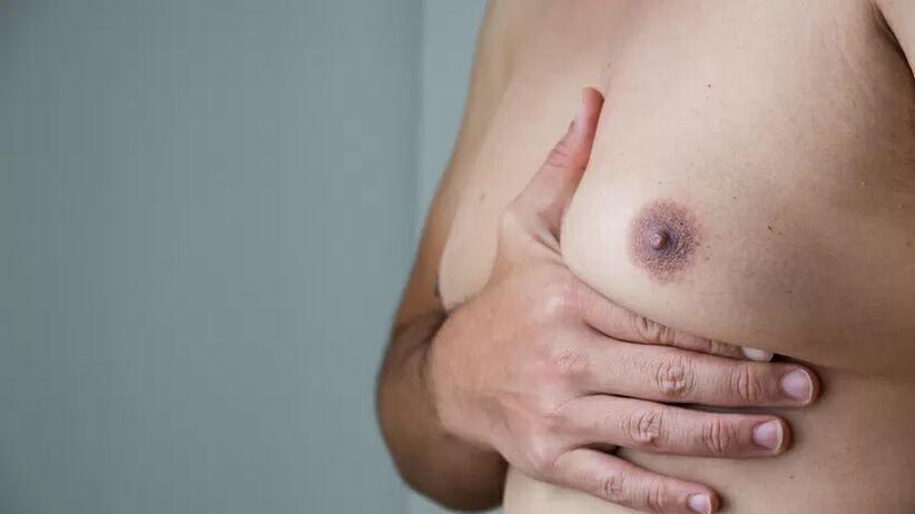 Ginekomastia odszkodowanie za lek Risperdal