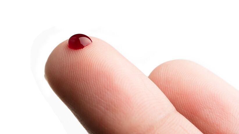 Hematofobia (strach przed krwią) - jakie są przyczyny?
