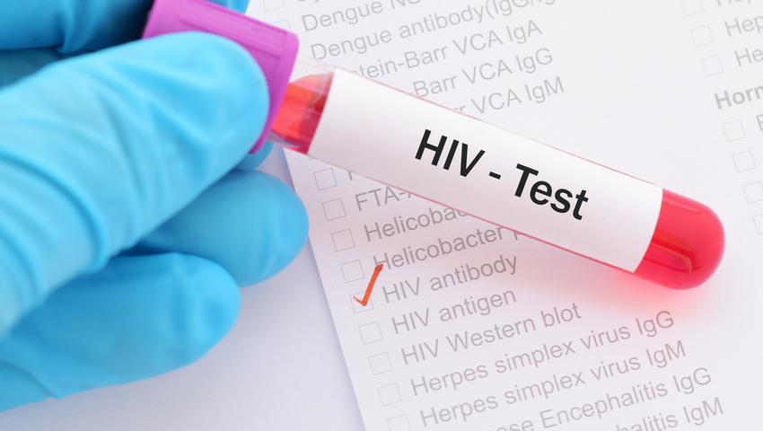 Test na HIV jest darmowy i anonimowy